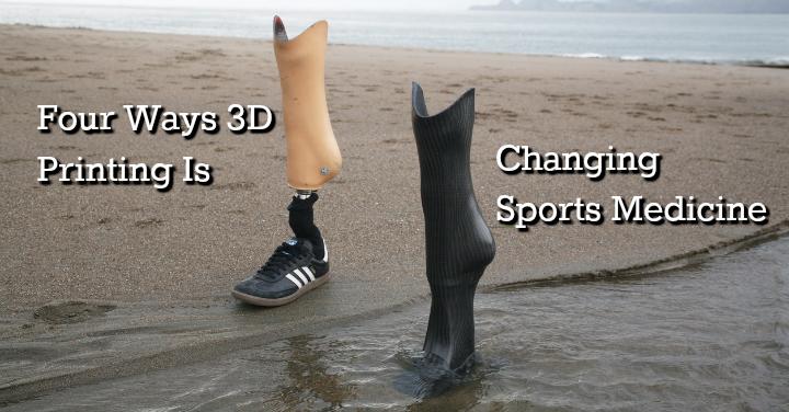 3d printing sports medicine